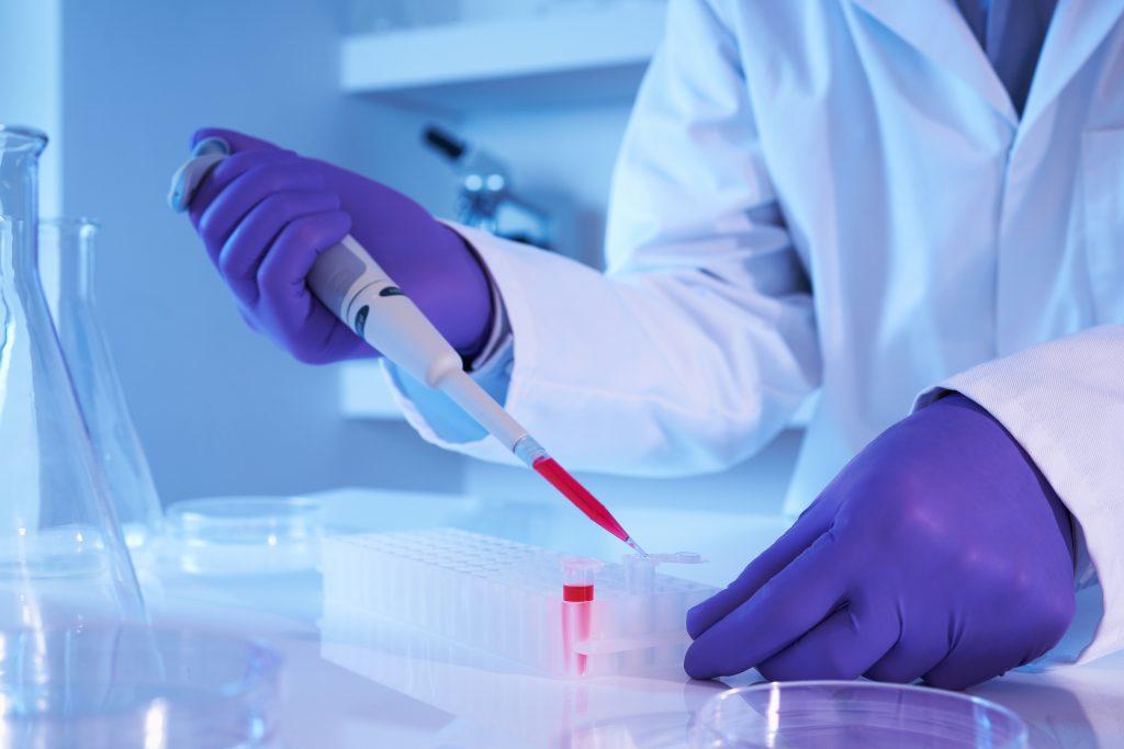 Parkinsons Stem Cells
